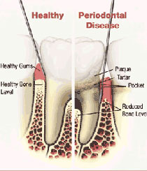 Gum Disease treatments in pimpri chinchwad