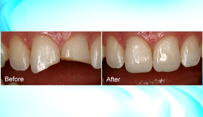 Cosmetic Dentistry Solutions for a beautiful and healthy smile