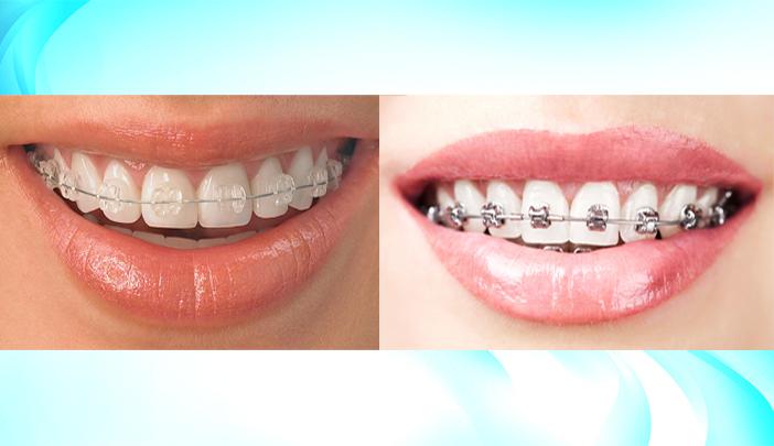 Cosmetic Dentistry in Pune