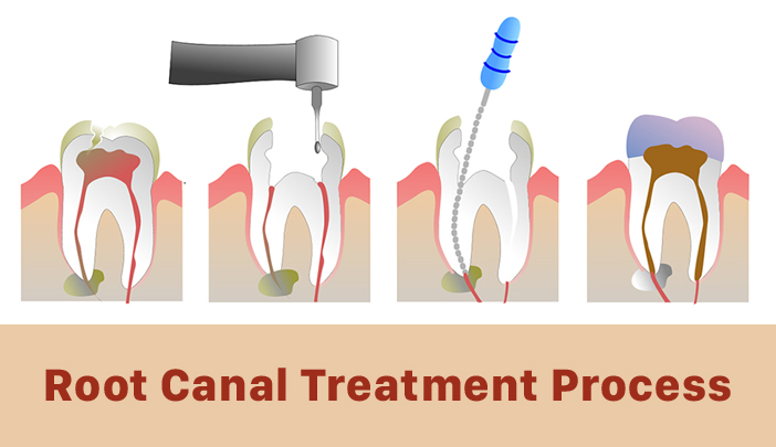 Check Steps involved in Root Canal Treatment - Sweet Smile