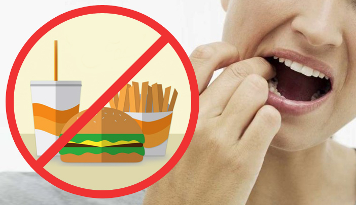 Foods and drinks that are bad for your teeth