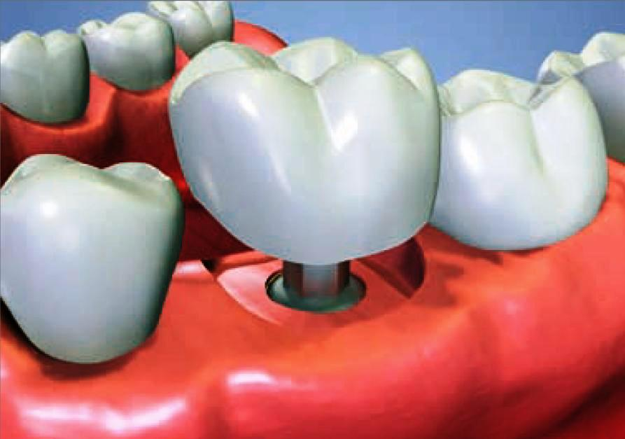 Looking for Dental Implants? Get smart and get it right!