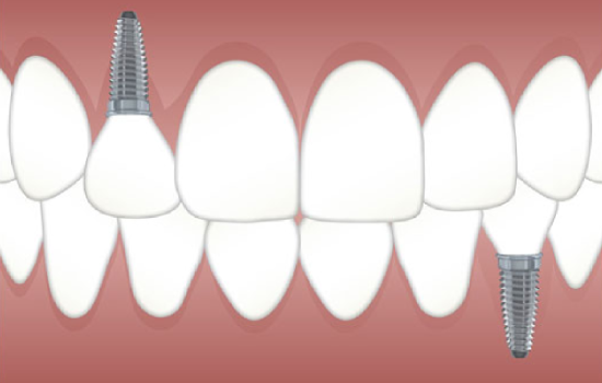 Best-Dentist-in-Pune