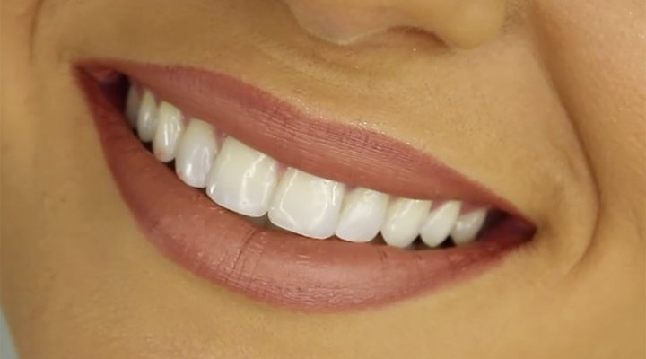Teeth Whitening Treatment In Pune Sweet Smile Dental