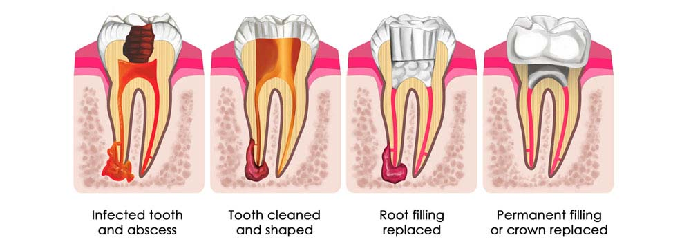 Root Canal Treatment Tips and Advice by Experienced Dentist in Pune
