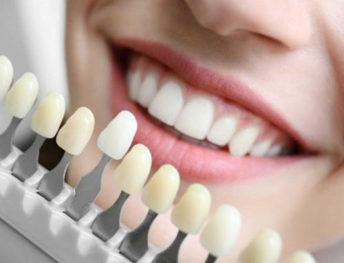 How Do Dental Implants Work With Your Existing Teeth