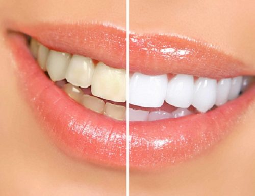Things to know before you go for teeth whitening treatment in Pune