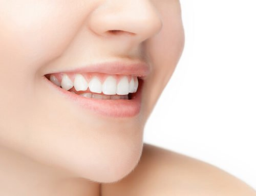How Teeth Whitening Treatment builds your confidence ?