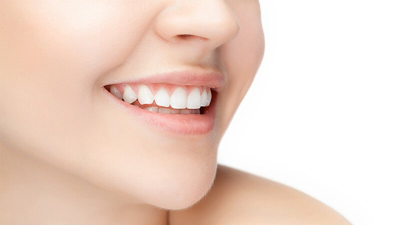 How Teeth Whitening Treatment Builds Your Confidence