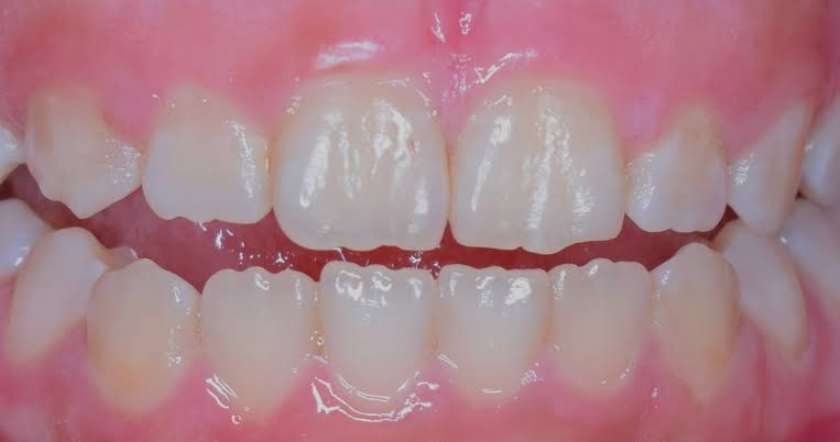 How Cosmetic Dentistry has Changed Over the Years?