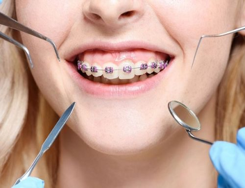 What are some of the most common orthodontic problems in children?