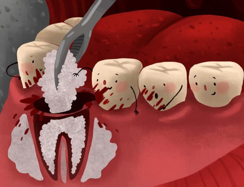 How Can Root Canal Treatment Help You?