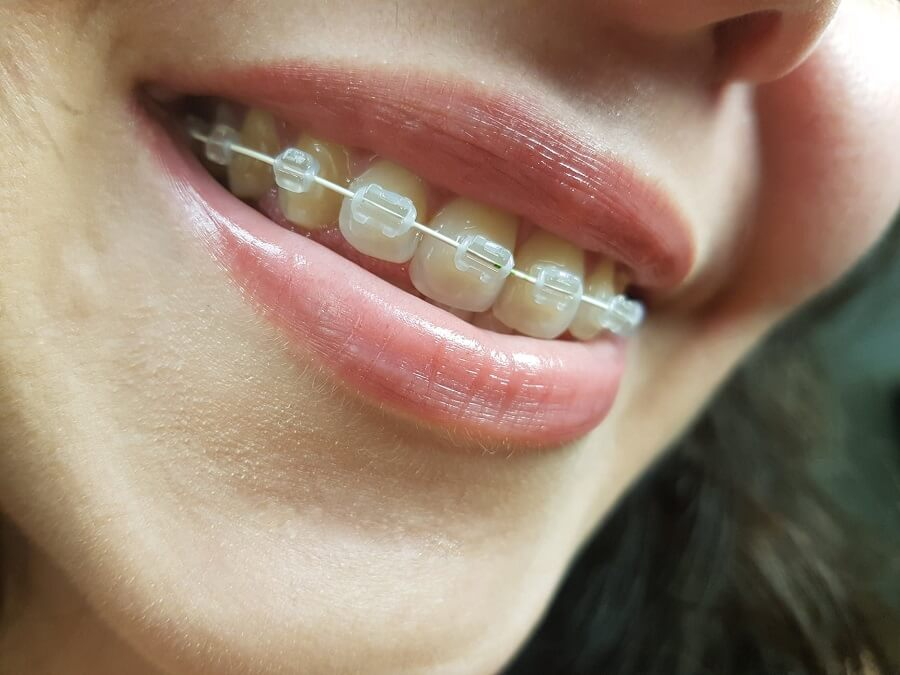 Confused between Removable and Fixed Braces?