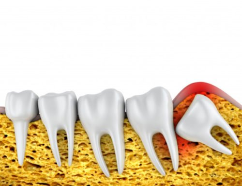 Wisdom Tooth Extraction Recovery Tips