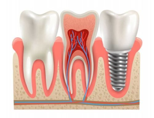 Dental Implants to Replace Loose Dentures