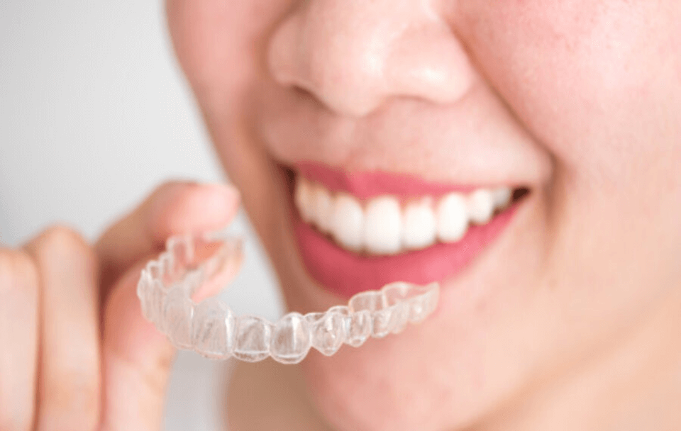 Get your charming smile back with Invisalign!