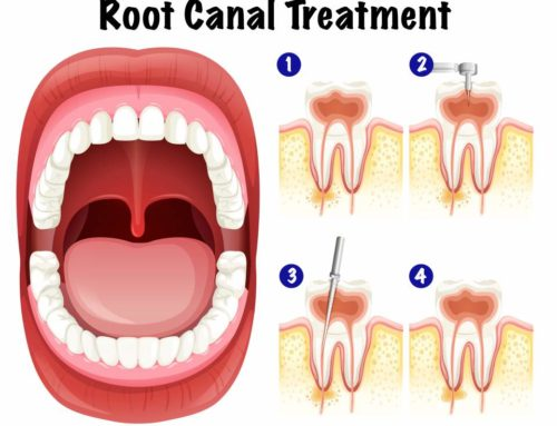 Why should an endodontist do your root canal?
