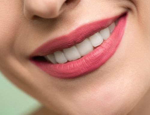 How to Extend the Results of Teeth Whitening?