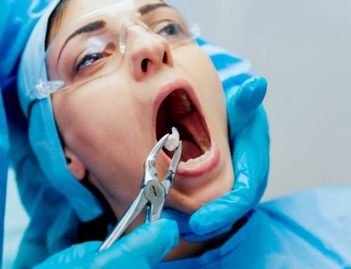 The Do's and Don'ts After a Tooth Extraction
