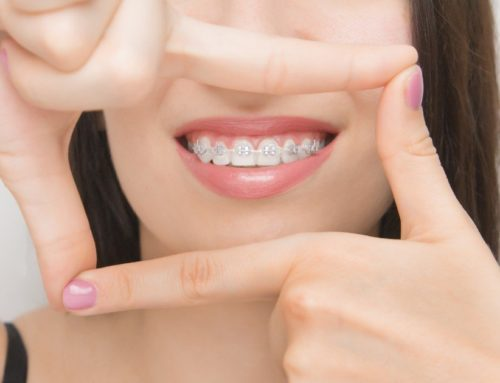The Do's and Don'ts of Braces Care