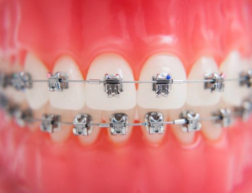 How Long do Braces Take to Straighten Teeth?