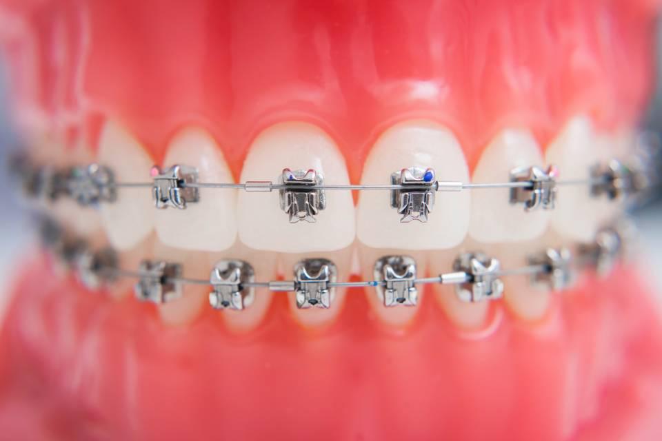 How Long do Braces Take to Straighten Teeth