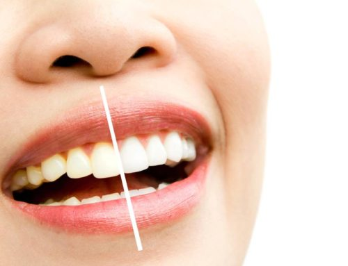 Best Tips to Whiten Teeth after Braces